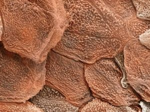 skin cells - image by Andrew SyredScience Photo Library